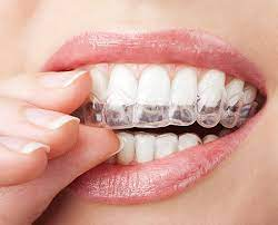 Consider Invisalign to Realize a Captivating Smile