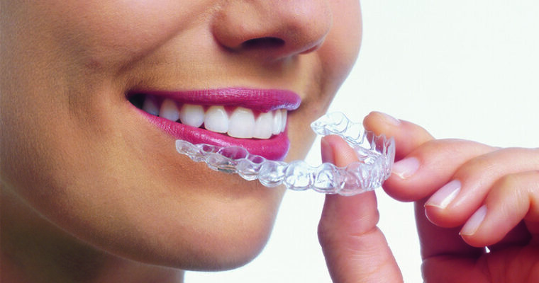 Improve Your Smile by Considering the Invisalign Technique
