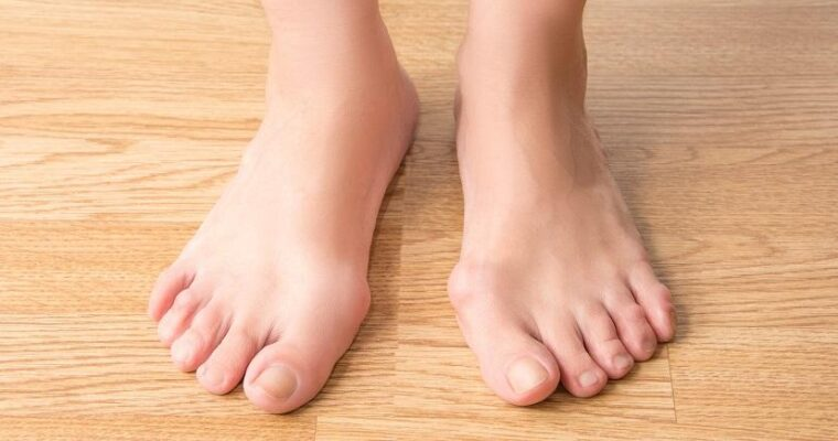 Fully Personalized Treatment for Bunions in Katy, Texas
