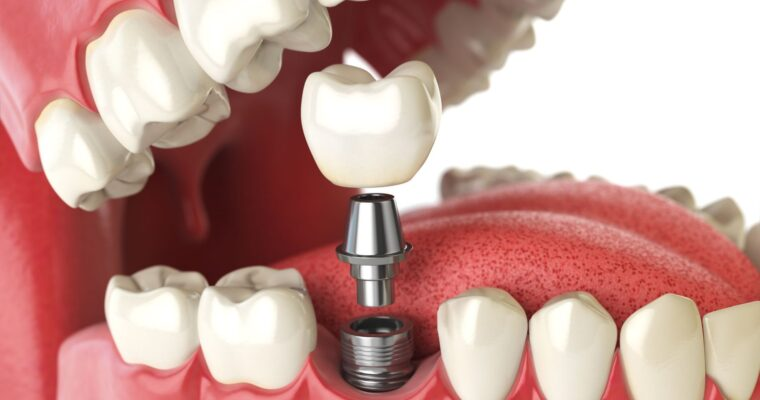 What to Eat After Dental Implant Surgery