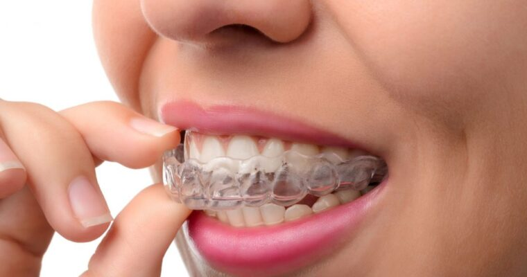 Unhappy with your teeth alignment? Get dental braces