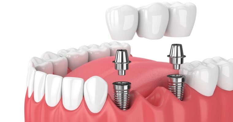 Dental Implants – How is it a Solution for your Health and Smile?
